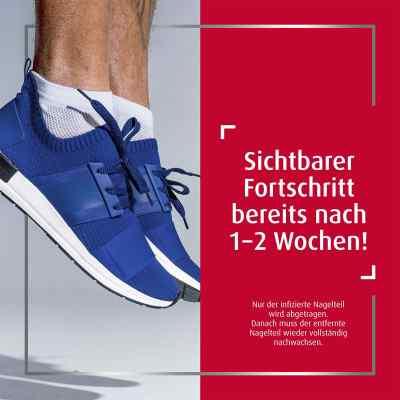 Canesten Extra-Nagelset gegen Nagelpilz (+15 Pflaster+Schaber)  bei deutscheinternetapotheke.de bestellen